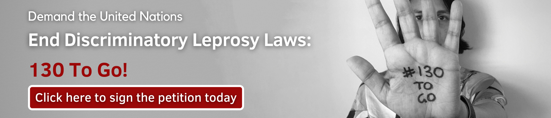 Leprosy laws